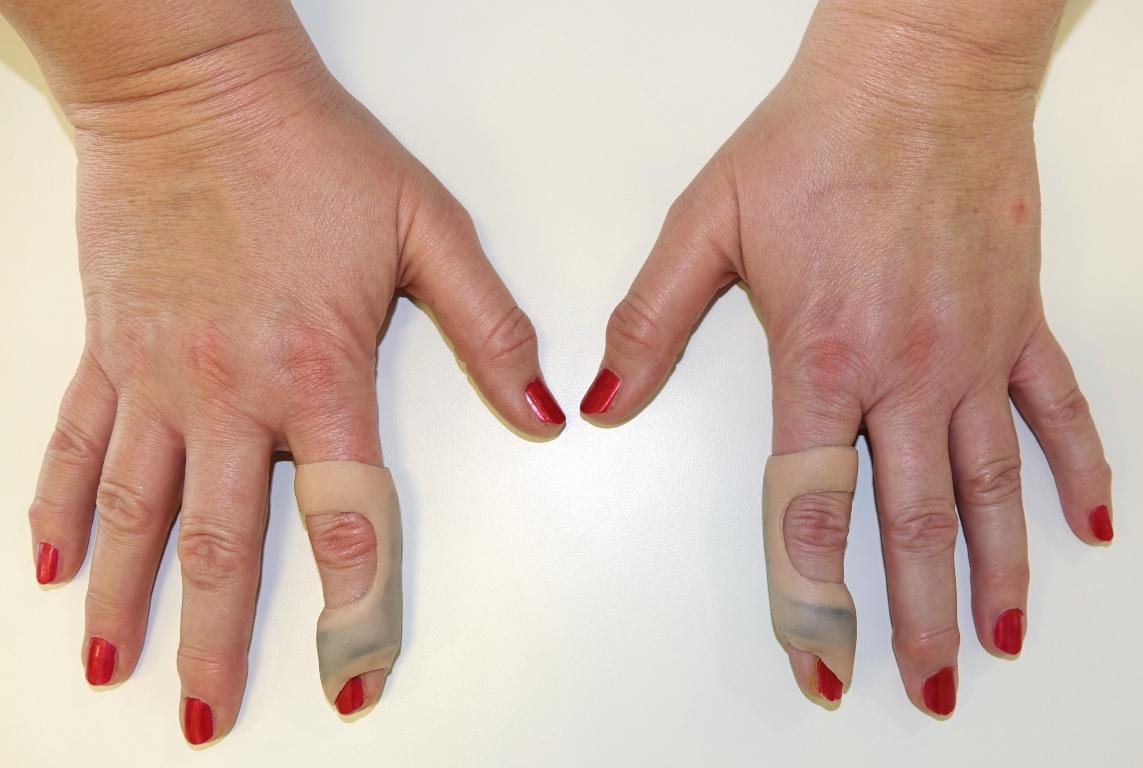 fingerdeformitaet_fingerorthesen