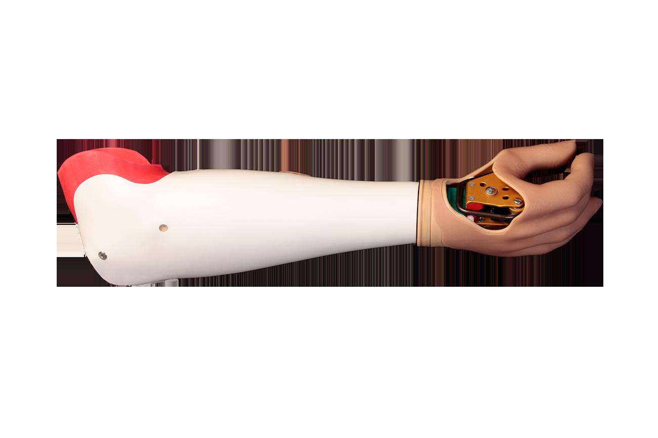 Unterarmprothese-Frei